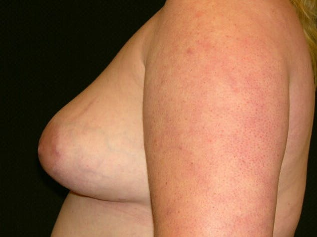 Peri-areolar Breast Lift Gallery - Patient 39235590 - Image 10