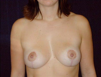 Vertical and Inverted T Breast Lift Gallery - Patient 39235589 - Image 2
