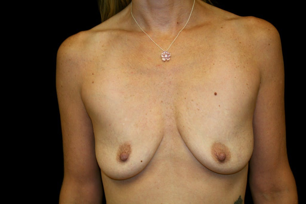 Breast Augmentation Gallery - Patient 39235599 - Image 1