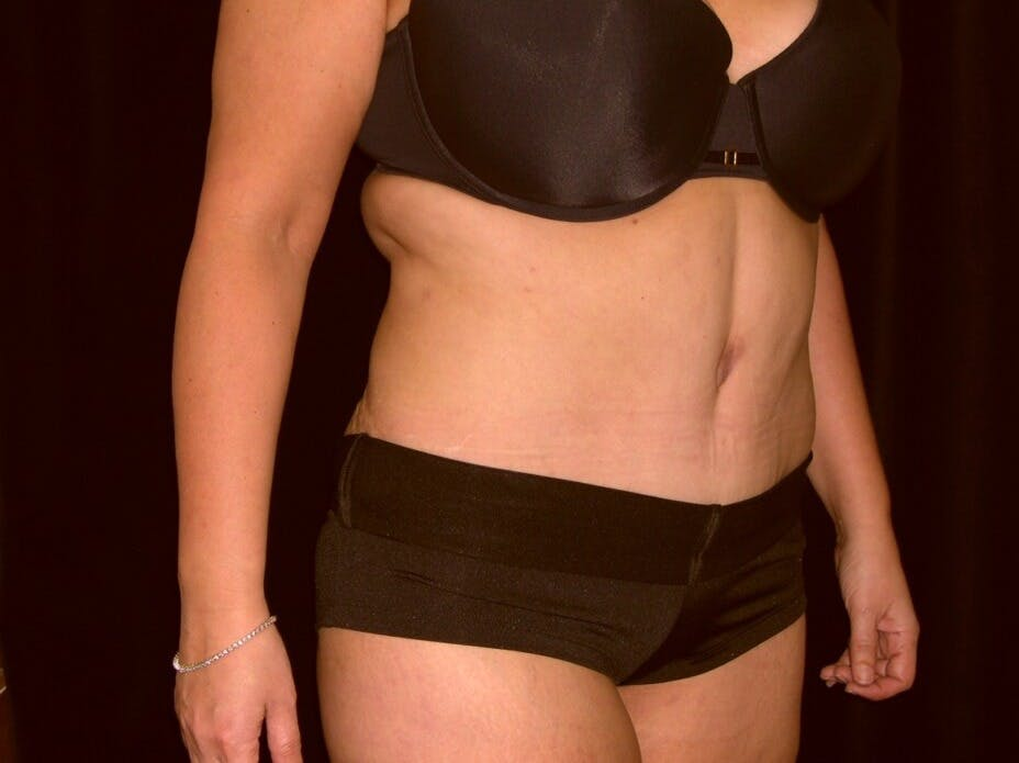 Tummy Tuck Gallery - Patient 39235594 - Image 8