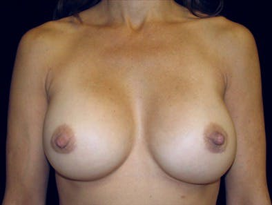 Revision Breast Surgery Gallery - Patient 39235591 - Image 2