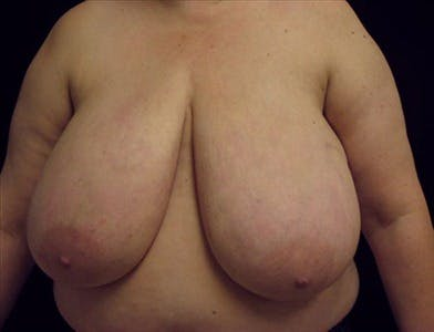 Breast Reduction T Incision Gallery - Patient 39235592 - Image 1