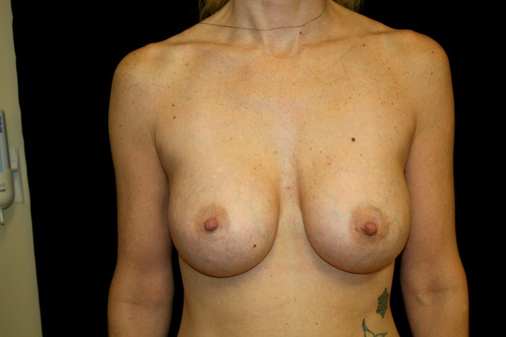 Breast Augmentation Gallery - Patient 39235599 - Image 2