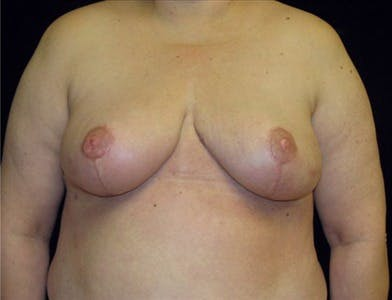 Breast Reduction T Incision Gallery - Patient 39235592 - Image 2