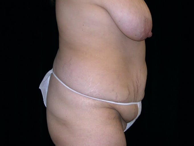 Tummy Tuck Gallery - Patient 39235594 - Image 9