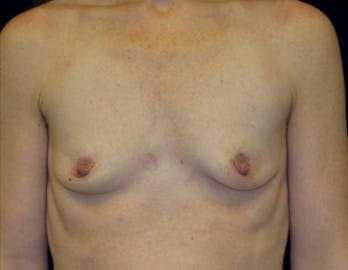MTF Breast Augmentation Gallery - Patient 39235593 - Image 1
