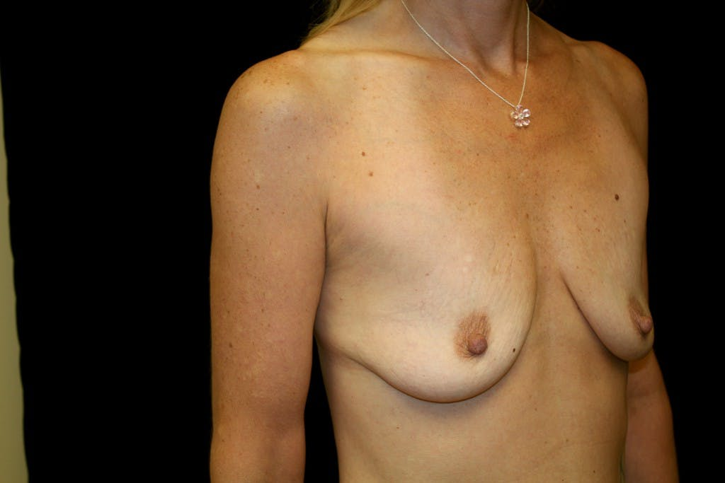 Breast Augmentation Gallery - Patient 39235599 - Image 3