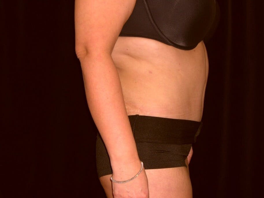 Tummy Tuck Gallery - Patient 39235594 - Image 10