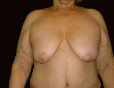Breast Reduction Vertical Gallery - Patient 39235595 - Image 1