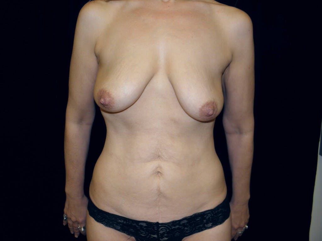 Peri-areolar Breast Lift Gallery - Patient 39235600 - Image 1