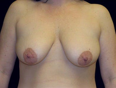 Vertical and Inverted T Breast Lift Gallery - Patient 39235596 - Image 1