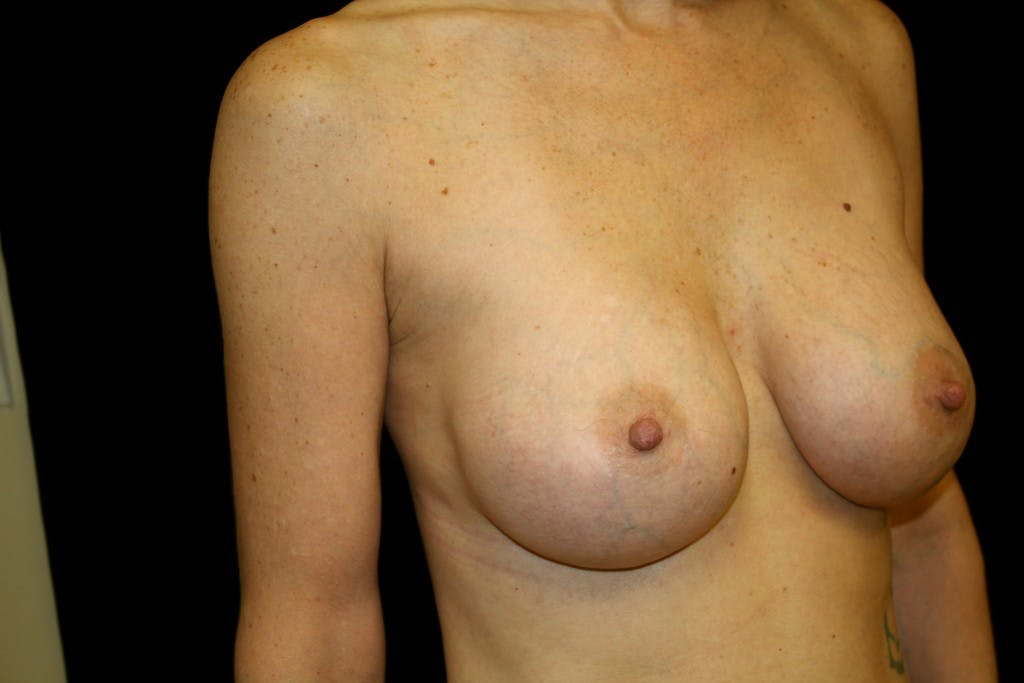Breast Augmentation Gallery - Patient 39235599 - Image 4