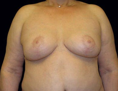 Breast Reduction Vertical Gallery - Patient 39235595 - Image 2