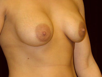 Revision Breast Surgery Gallery - Patient 39235597 - Image 1