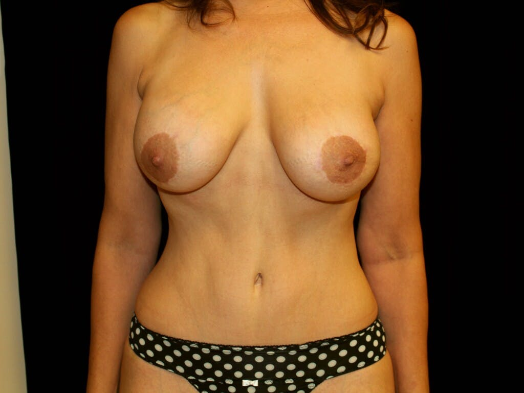 Peri-areolar Breast Lift Gallery - Patient 39235600 - Image 2