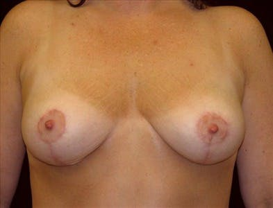Vertical and Inverted T Breast Lift Gallery - Patient 39235596 - Image 2
