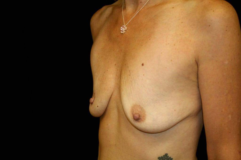 Breast Augmentation Gallery - Patient 39235599 - Image 5