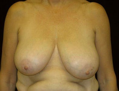 Breast Reduction T Incision Gallery - Patient 39235598 - Image 1