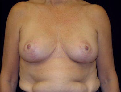 Breast Reduction T Incision Gallery - Patient 39235598 - Image 2
