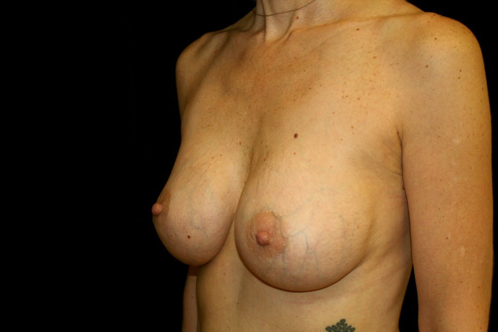 Breast Augmentation Gallery - Patient 39235599 - Image 6