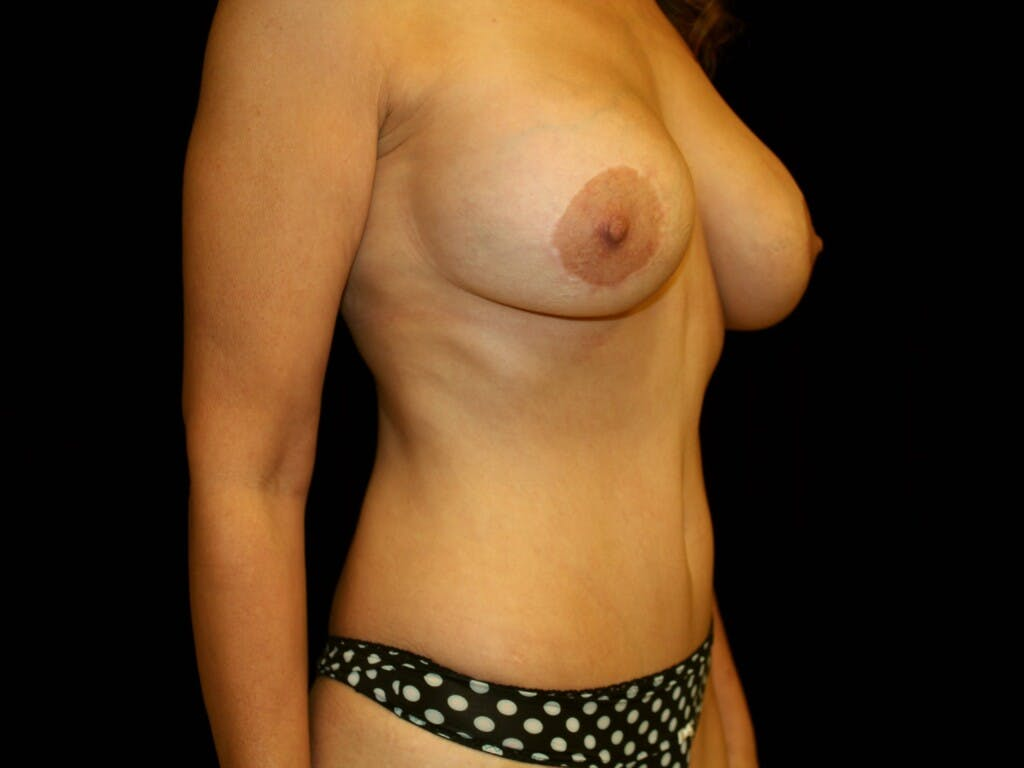Peri-areolar Breast Lift Gallery - Patient 39235600 - Image 4