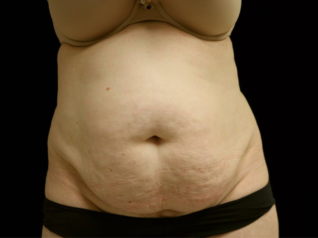 Tummy Tuck Gallery - Patient 39235611 - Image 1