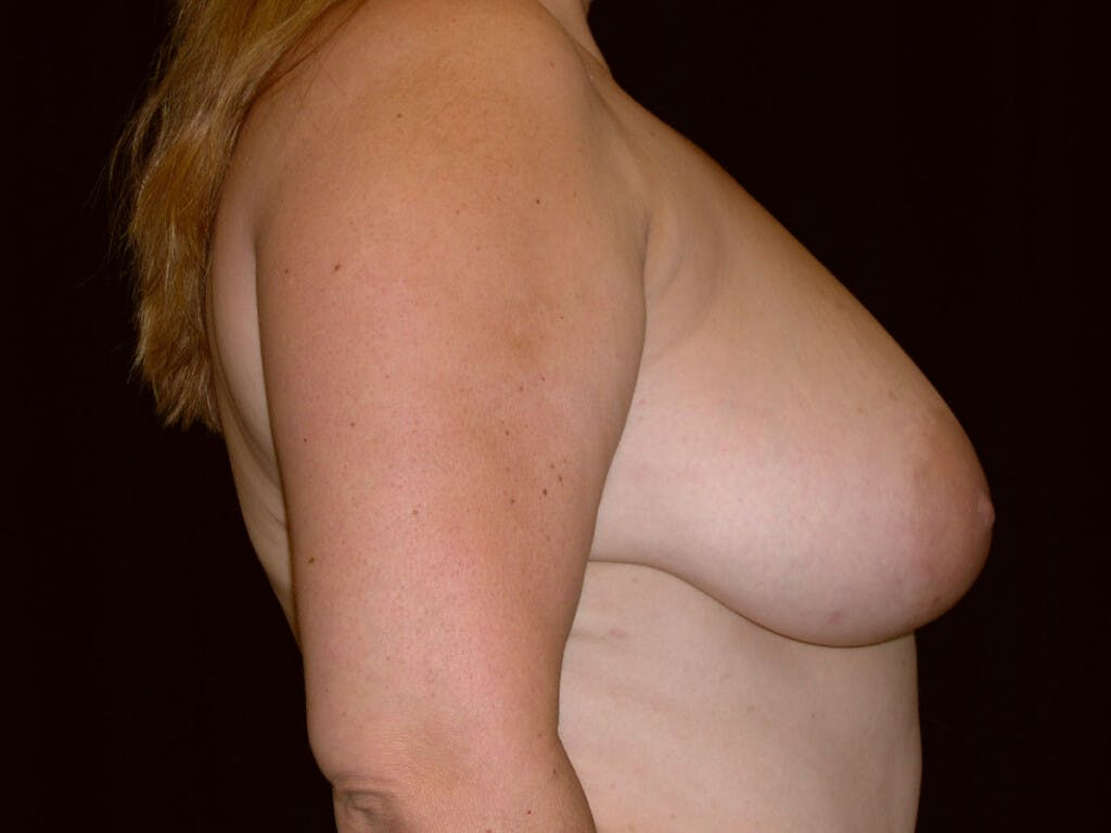 Vertical and Inverted T Breast Lift Gallery - Patient 39235604 - Image 1