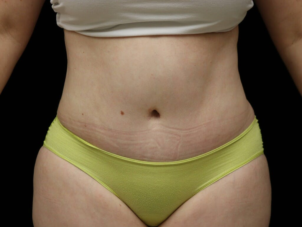 Tummy Tuck Gallery - Patient 39235611 - Image 2