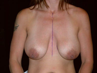 Revision Breast Surgery Gallery - Patient 39235602 - Image 1