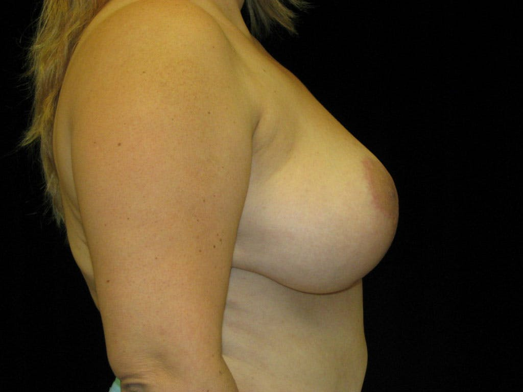 Vertical and Inverted T Breast Lift Gallery - Patient 39235604 - Image 2