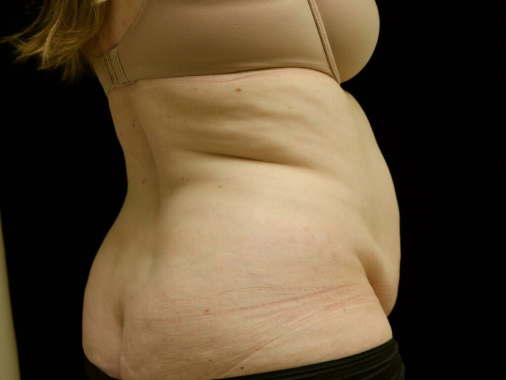 Tummy Tuck Gallery - Patient 39235611 - Image 3
