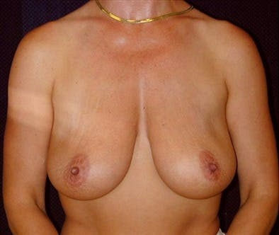 Breast Reduction T Incision Gallery - Patient 39235603 - Image 1