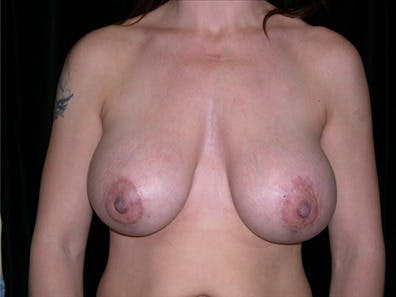 Revision Breast Surgery Gallery - Patient 39235602 - Image 2