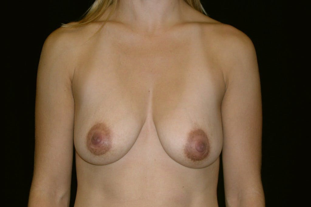 Breast Augmentation Gallery - Patient 39235606 - Image 1