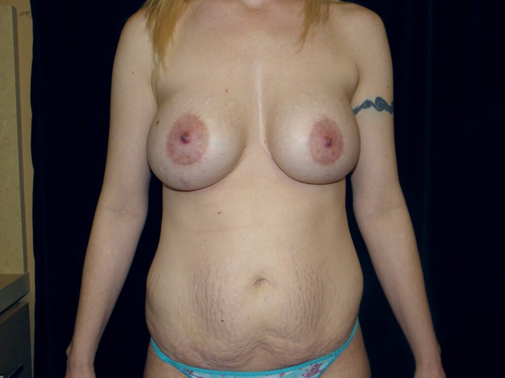 Peri-areolar Breast Lift Gallery - Patient 39235613 - Image 1