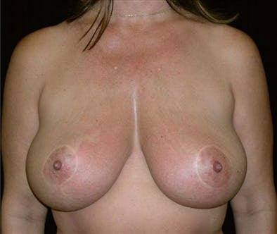 Breast Reduction T Incision Gallery - Patient 39235603 - Image 2