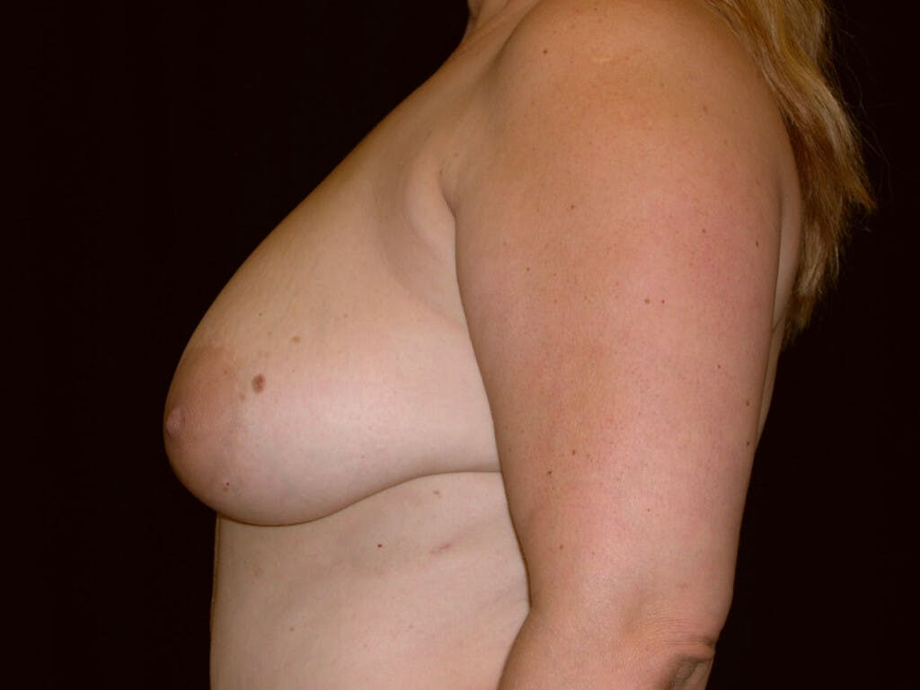 Vertical and Inverted T Breast Lift Gallery - Patient 39235604 - Image 3