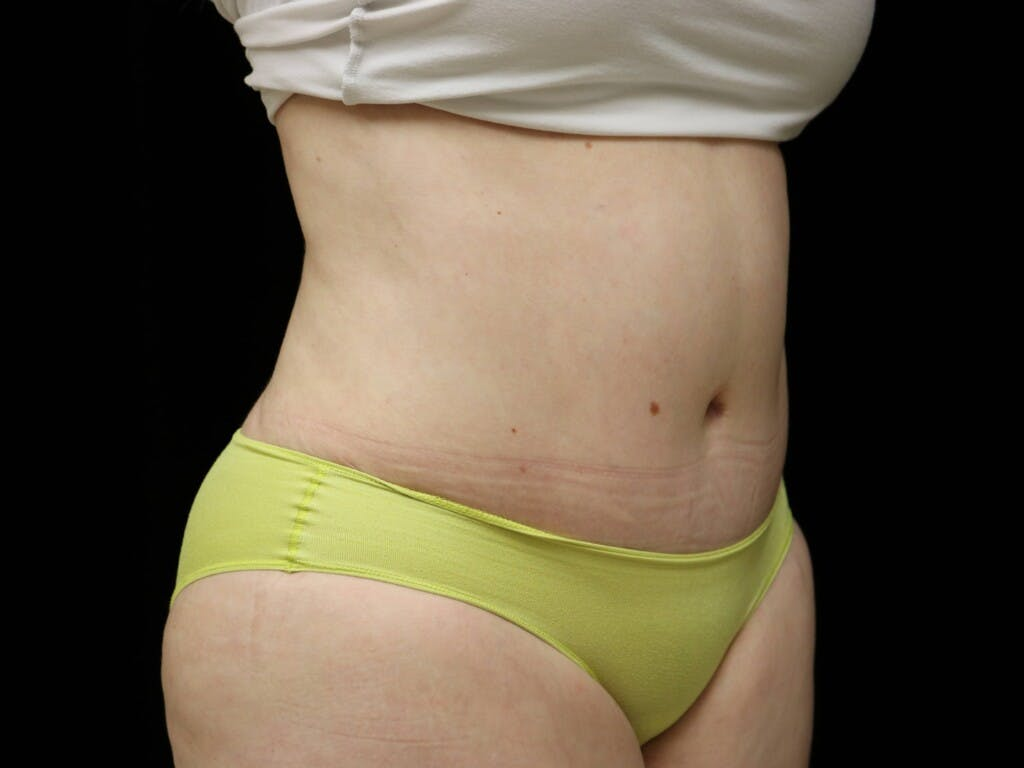 Tummy Tuck Gallery - Patient 39235611 - Image 4