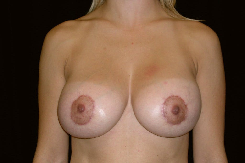 Breast Augmentation Gallery - Patient 39235606 - Image 2