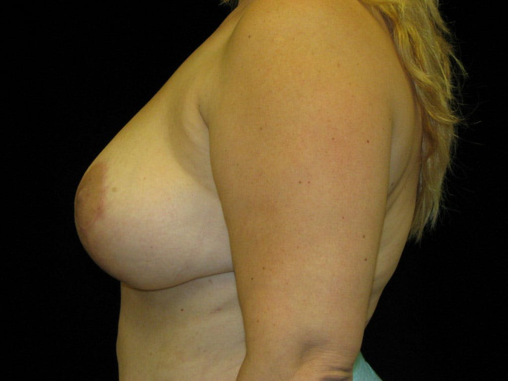 Vertical and Inverted T Breast Lift Gallery - Patient 39235604 - Image 4
