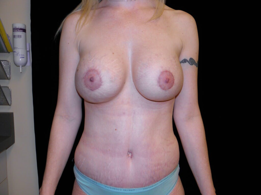 Peri-areolar Breast Lift Gallery - Patient 39235613 - Image 2