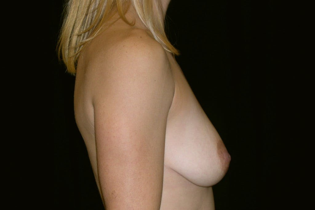 Breast Augmentation Gallery - Patient 39235606 - Image 3