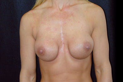 Revision Breast Surgery Gallery - Patient 39235605 - Image 1