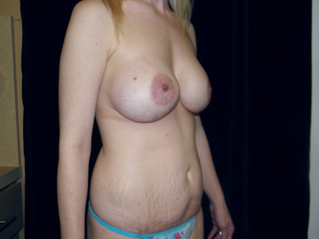 Peri-areolar Breast Lift Gallery - Patient 39235613 - Image 3