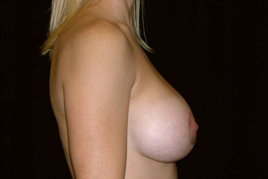Breast Augmentation Gallery - Patient 39235606 - Image 4