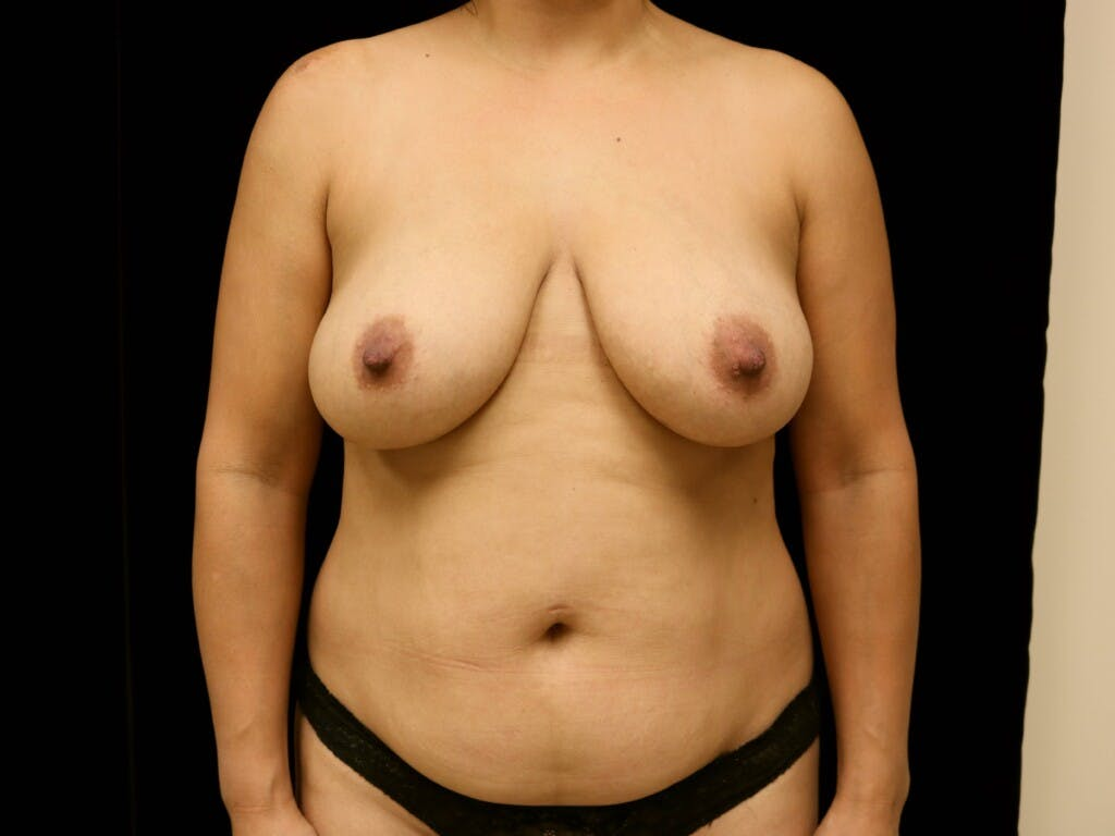 Breast Reduction T Incision Gallery - Patient 39235616 - Image 1