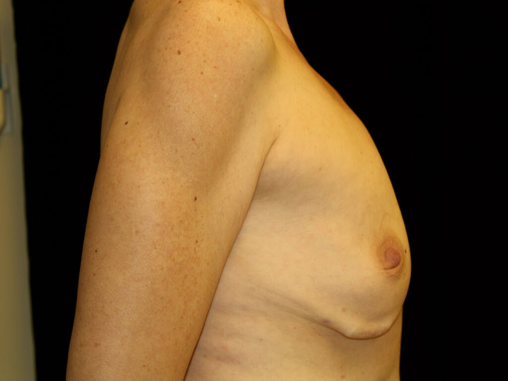 Breast Reduction Vertical Gallery - Patient 39235612 - Image 3