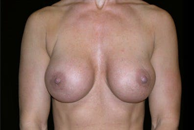 Revision Breast Surgery Gallery - Patient 39235605 - Image 2
