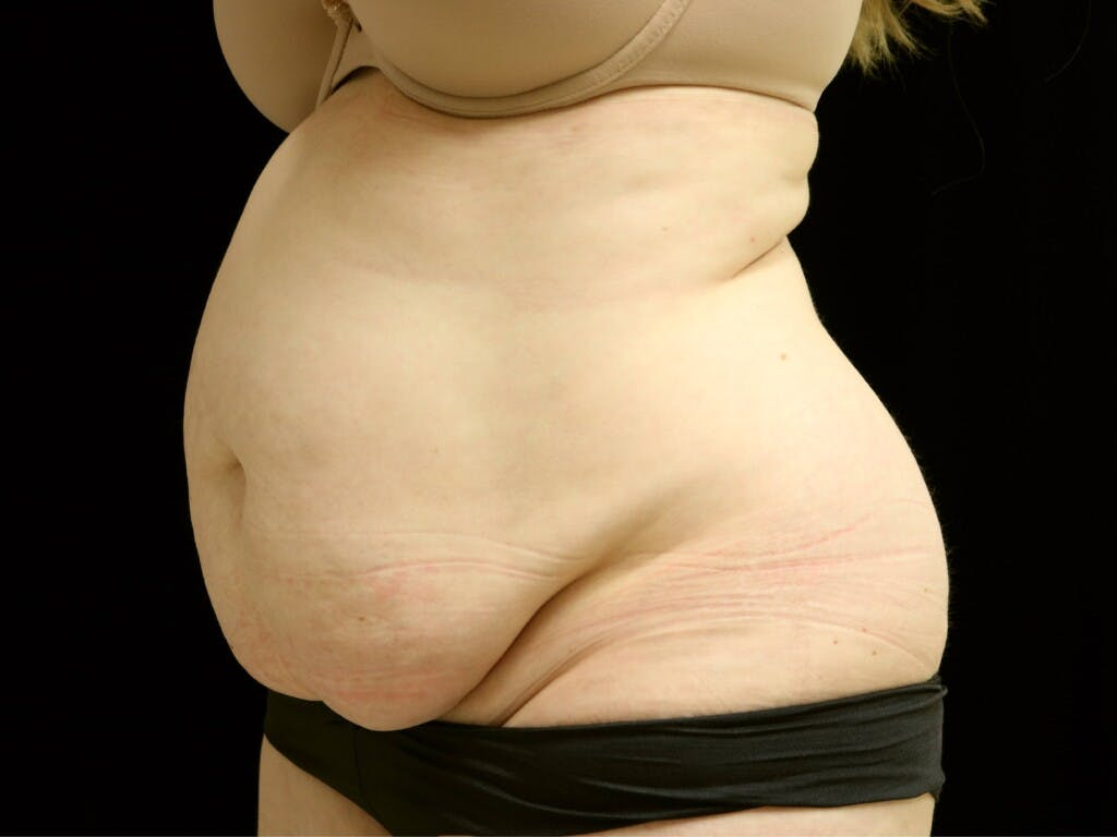 Tummy Tuck Gallery - Patient 39235611 - Image 7