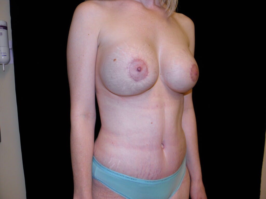 Peri-areolar Breast Lift Gallery - Patient 39235613 - Image 4